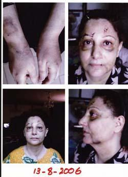 Attacked on August 8 2006 by masked gunmen in her clinic