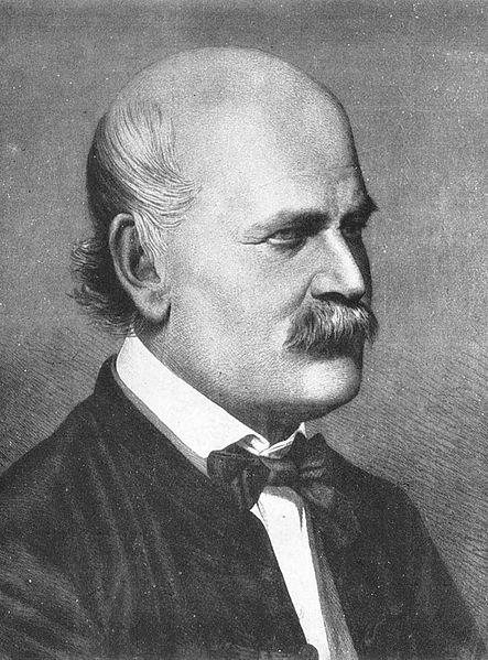 Semmelweis Investigations into Childbed Fever Semmelweis wanted to know why the
