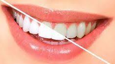 Get The Services of An Experienced Dentist Generally, we go see an experienced dentist when we wish to check out a problematic tooth. Do not think that it is very late, as it is surely not.