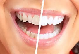 Are You Searching Affordable Dental Implant Treatment You can check that dental implants have turn into very famous as in the long-run, top quality dental implants executed by a trained dental team