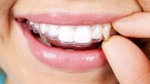 Dental Clinic Houston That Fits with Your Family s Needs Search a new dental care service provider for you as well as your family can be very tough.