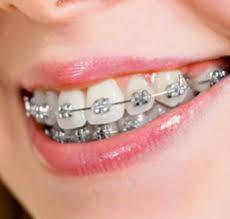 Things to consider before selecting nearest orthodontist Pediatric Pediatric orthodontist is the one having specialization in children health caring.