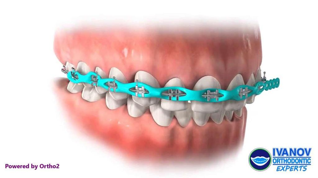3. Lingual braces: These are very different from traditional braces like metal braces or ceramic braces. It is basically customized. It is invisible because it requires installation behind teeth.